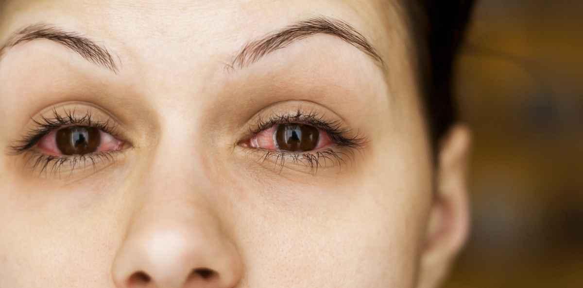 äänen Käheys Allergia